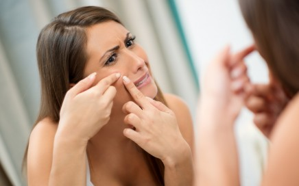 Zašto nastaju akne